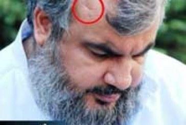 عکس:زخمی شدن سید حسن نصر الله در جنگ 33 روزه
